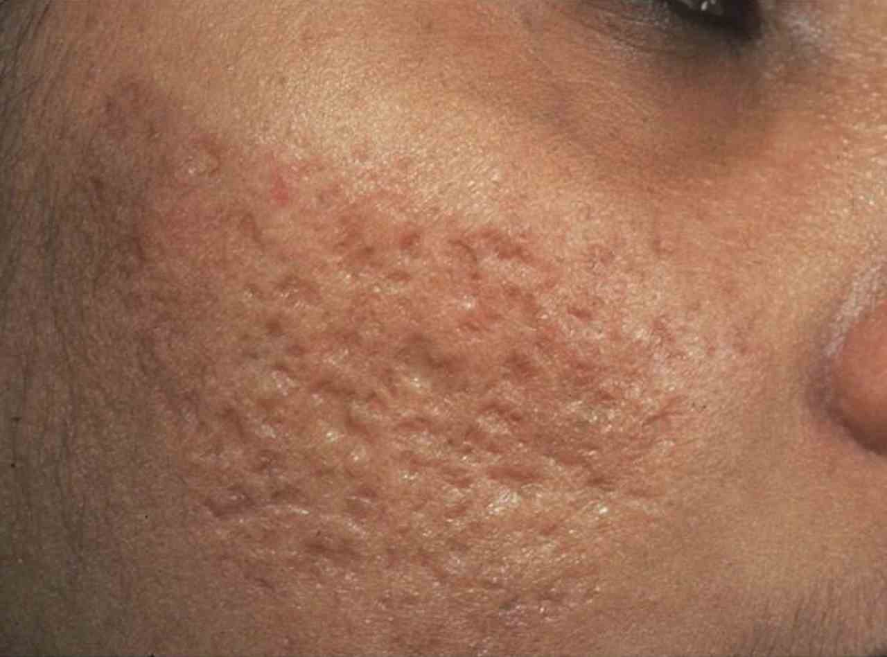 Пятна и шрамы от ожога: лучшие рекомендации по лечению рубцов и отбеливанию пигментации