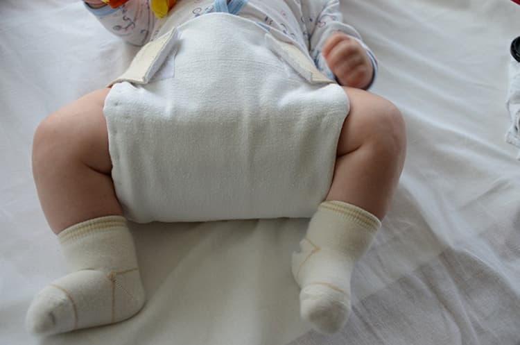 Широкое пеленание новорожденного при дисплазии тазобедренных суставов