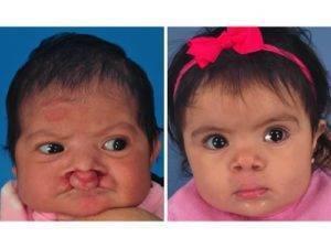 Заячья губа (волчья пасть). о заболевании, причины, операция, фото до и после - все о зубах