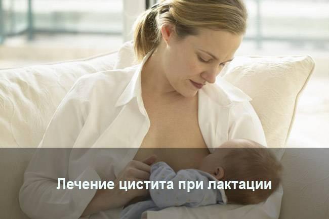 Лечение цистита при грудном вскармливании медикаментами и народными средствами