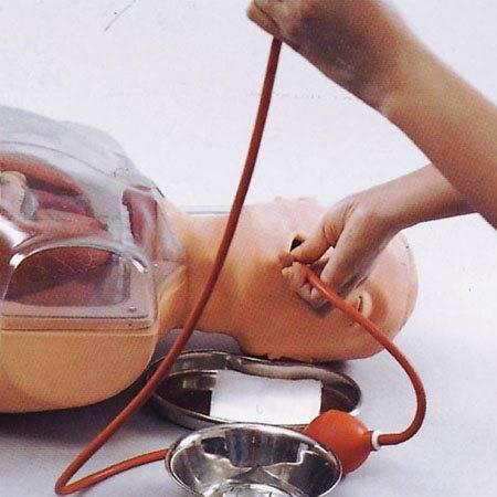 Промывание желудка ребенку: алгоритм проведения процедуры. возможные осложнения