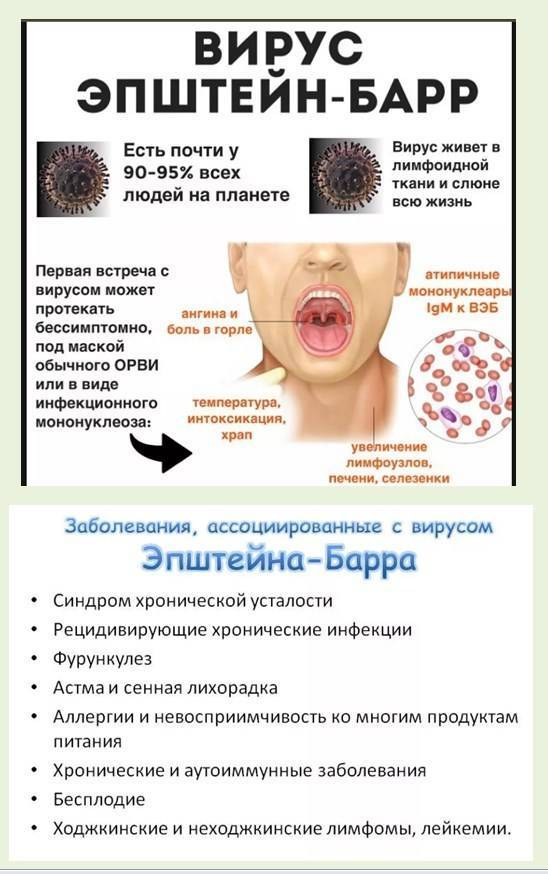Инфекционный мононуклеоз у детей (45 фото): симптомы и лечение, что это такое, чем лечить сыпь и как долго проходит мононуклеозная ангина, последствия и профилактика заболевания, диета
