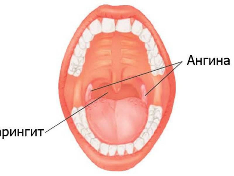 Как выглядит здоровое и больное красное горло у ребенка, какими в норме должны быть миндалины?