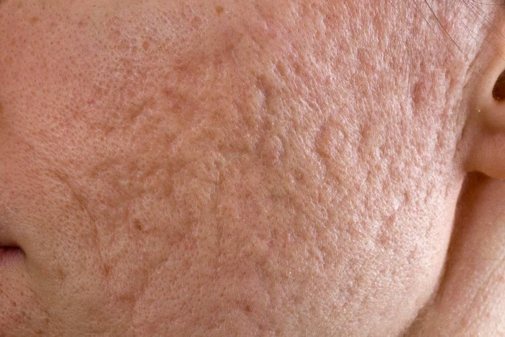 ᐉ лечение кожи после ветрянки у взрослых. причины формирования шрамов. чем мазать рубцы после ветрянки ➡ klass511.ru