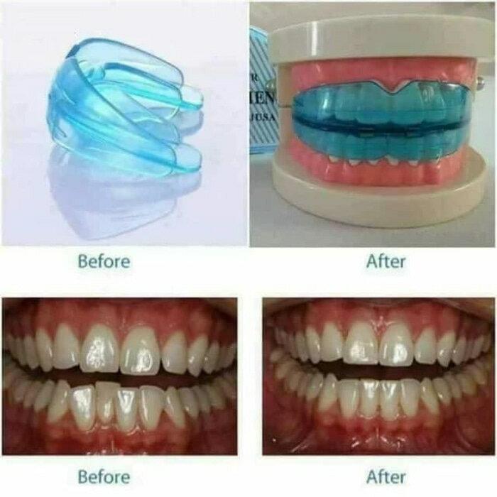 Как выровнять зубы без брекетов взрослым и подросткам, можно ли это сделать быстро