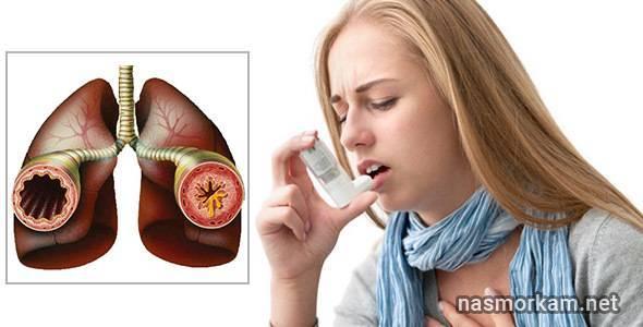 Першение в горле у ребенка: причины постоянного покашливания и лечение