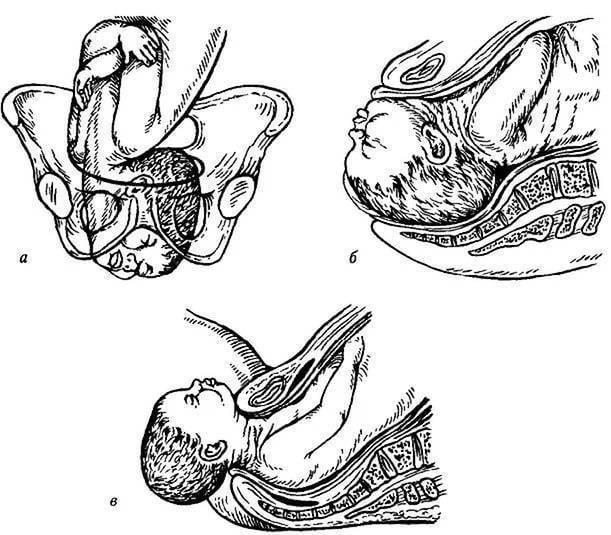 Как понять что головка ребенка опустилась в таз и когда рожать. опущение головки плода: как происходит