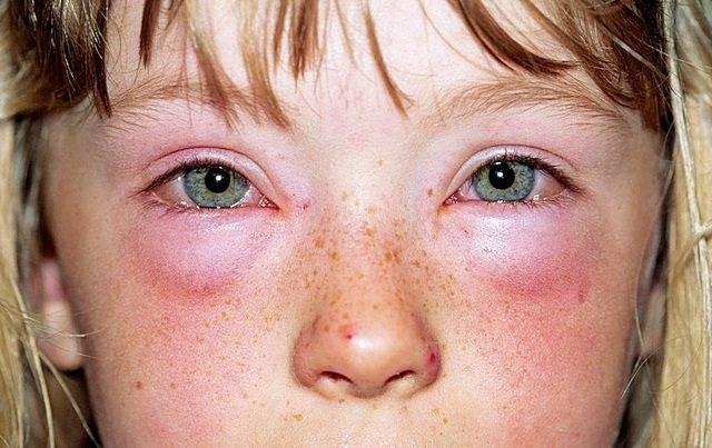 Аллергия на шоколад: симптомы, фото, диагностика, лечение и как проявляется у детей, может ли быть у взрослых, как выглядит пораженное лицо и другие части тела?