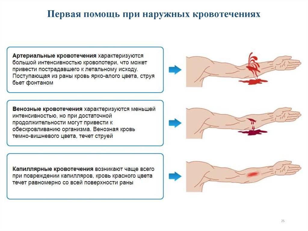 Кровотечение при месячных