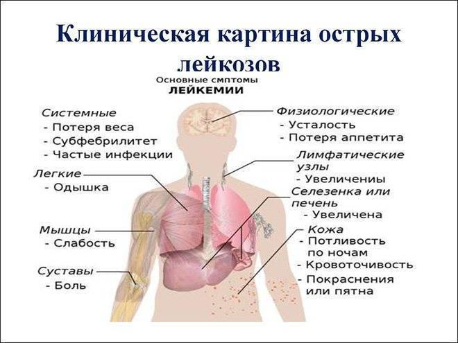 Симптомы лимфомы у детей   рак - лечение и профилактика