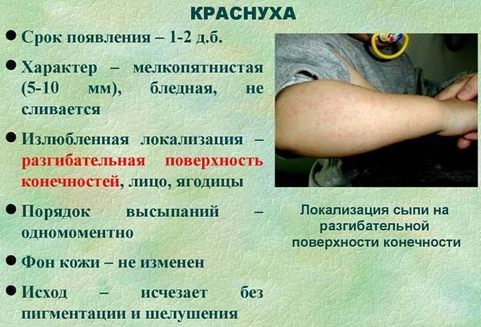 Краснуха у детей: фото, признаки и лечение