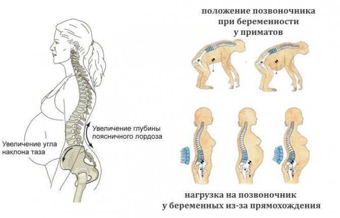Расхождение тазовых костей при беременности симптомы - все о суставах