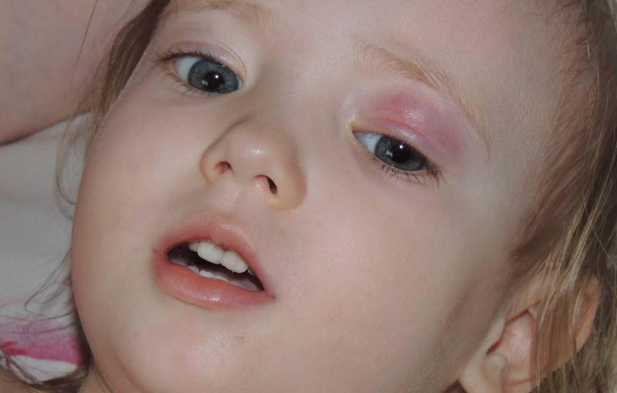 Халязион нижнего века у ребенка: лечение и причины развития