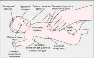 Как выглядит понос у грудничка - фото, причины и симптомы поноса
