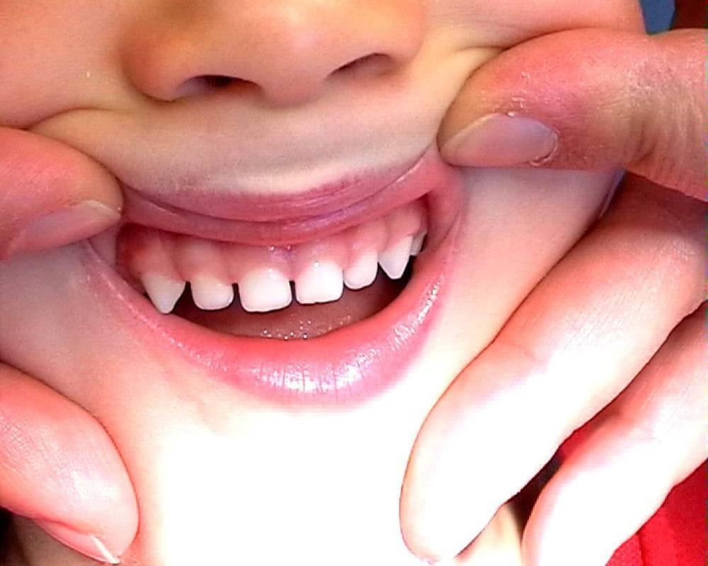 Почему у ребенка растут кривые зубы: причины и методы профилактики - много зубов