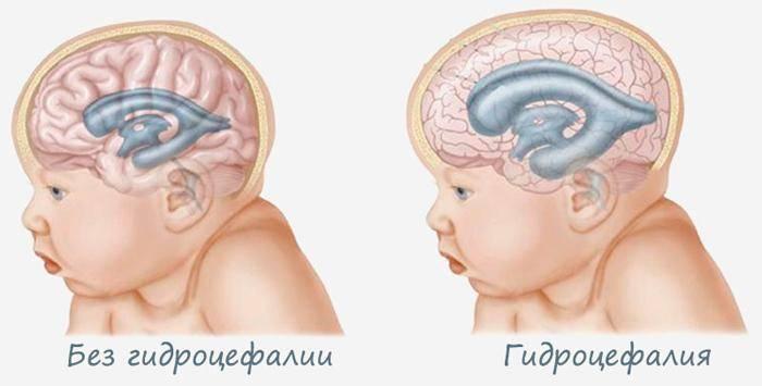 Последствия гипоксии головного мозга у новорожденных, возможные осложнения - врач-невролог