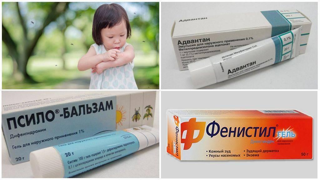 Как избавиться от зуда в домашних условиях – 10 советов - народная медицина | природушка.ру