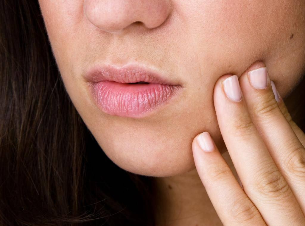 Все о лечении заед у ребенка: причины покраснения в уголках рта, чем мазать