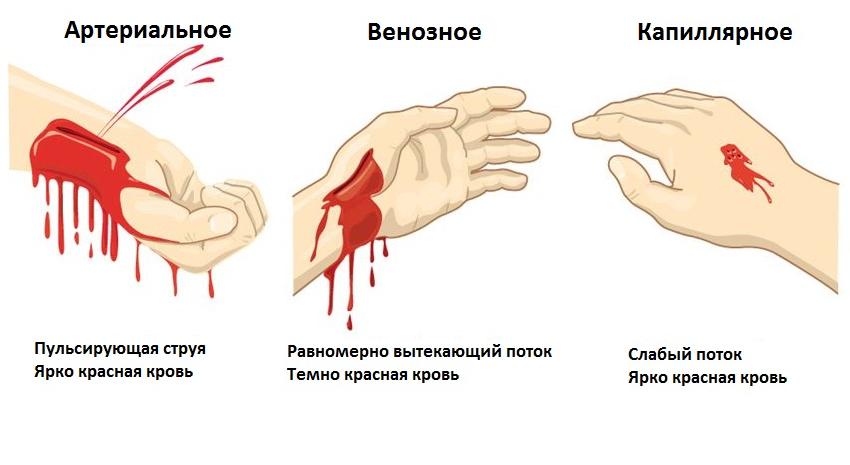 Обильное менструальное кровотечение