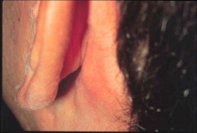 Расположение, размеры и лечение паховых лимфоузлов у ребенка