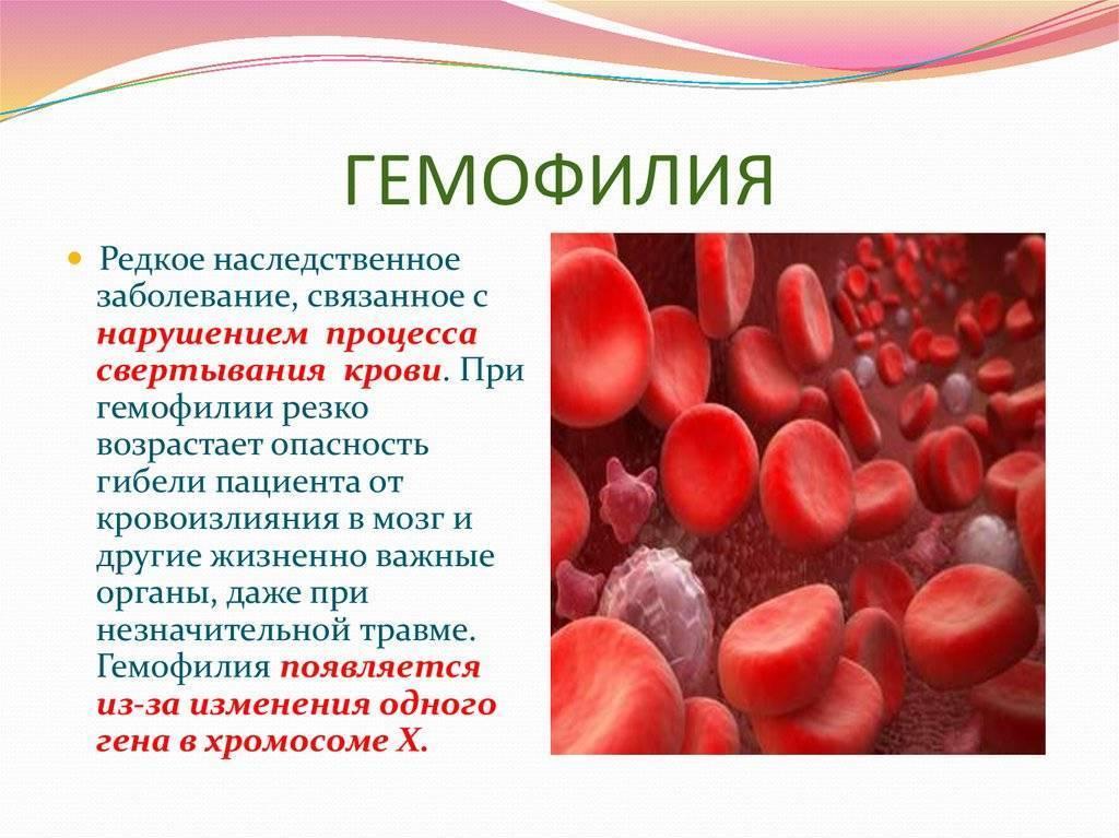Гемофилия у детей, её симптомы, лечение и другие аспекты