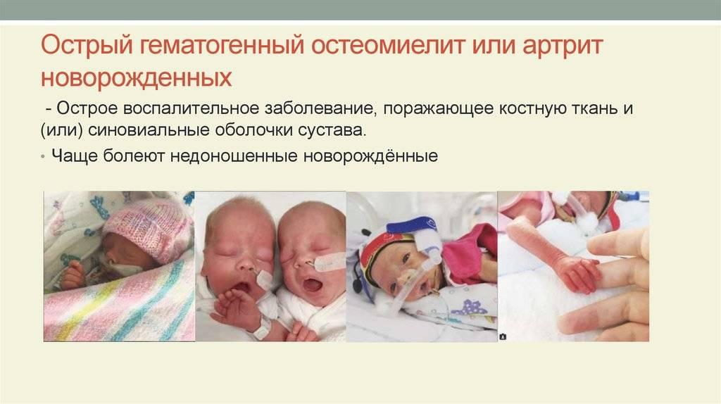 Остеомиелит у детей и новорожденных: симптомы и лечение, причины возникновения
