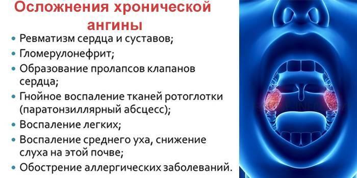 Последствия и осложнения после ангины у взрослых и детей pulmono.ru последствия и осложнения после ангины у взрослых и детей
