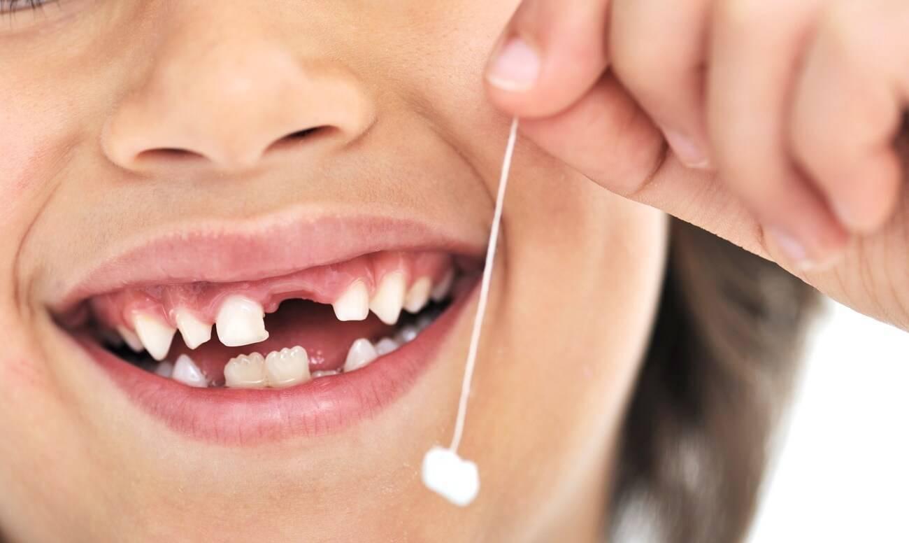 Можно ли удалять молочные зубы в 6 лет?