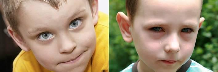 Почему возникают синяки под глазами у ребенка? что делать?