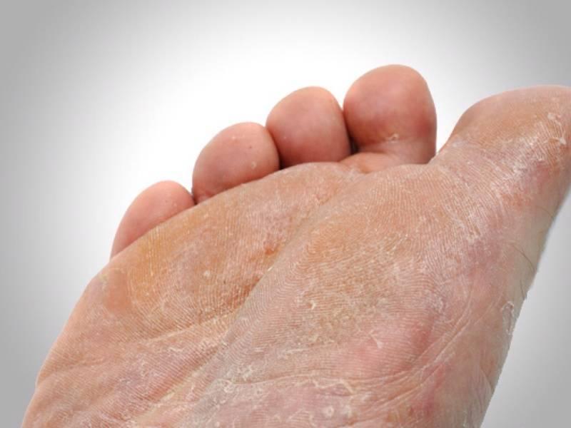 Грибок ногтей у детей — фото, лечение, причины и симптомы