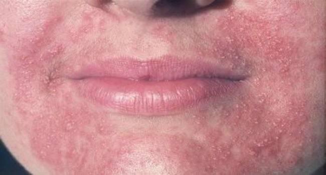 Виды дерматита на лице и их лечение
