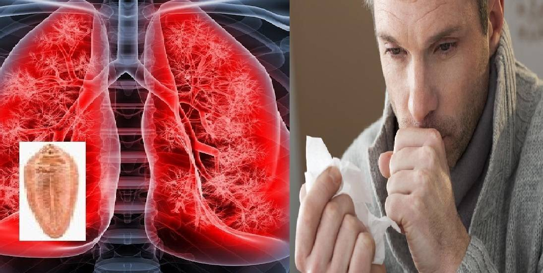 Может ли быть кашель при глистах и паразитах pulmono.ru может ли быть кашель при глистах и паразитах