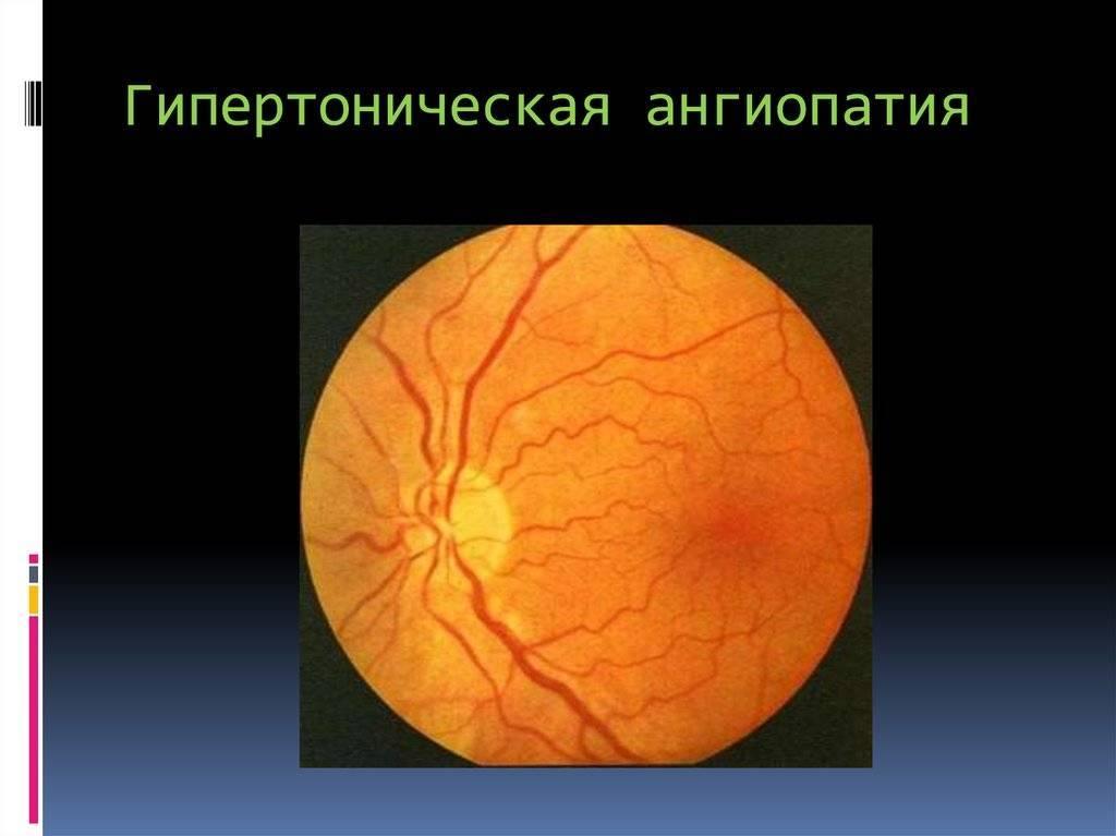 Ангиопатия сосудов сетчатки глаза у новорожденного ребенка (детей). что такое ангиопатия сетчатки глаз у ребенка, как лечится заболевание?