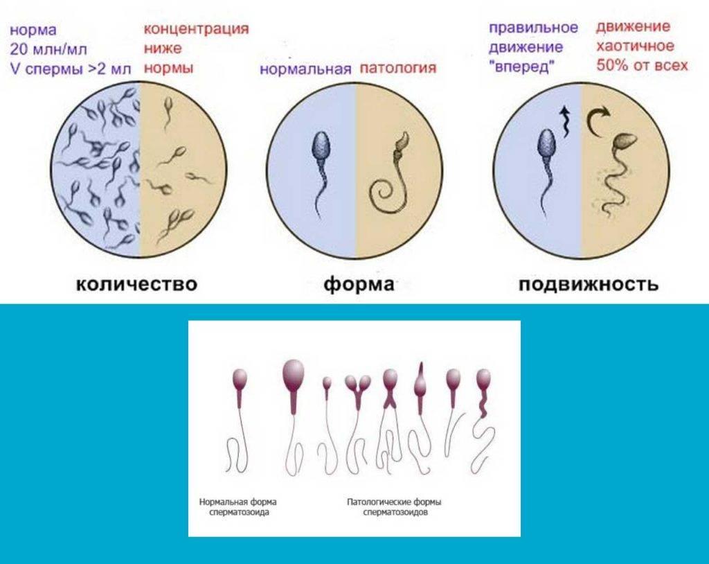 Спермограмма: подготовка к сдаче, расшифровка анализа, препараты для улучшения качества
