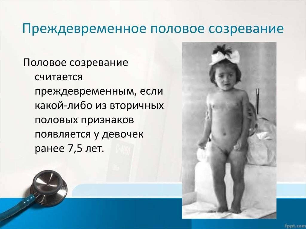 Задержка полового развития у мальчиков и девочек: причины, диагноз, лечение | нарушения развития | vpolozhenii.com