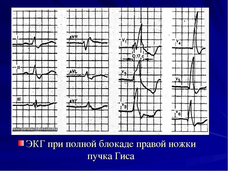 Блокада левой ножки пучка гиса: признаки на экг, опасно ли это | osostavekrovi.com