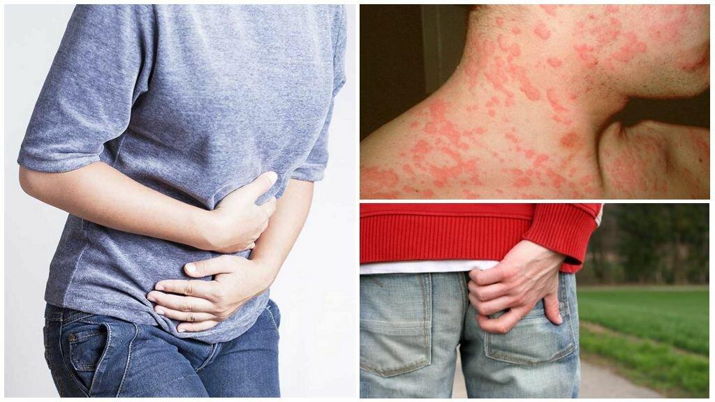 Чесотка - симптомы фото, первые признаки и лечение чесотки