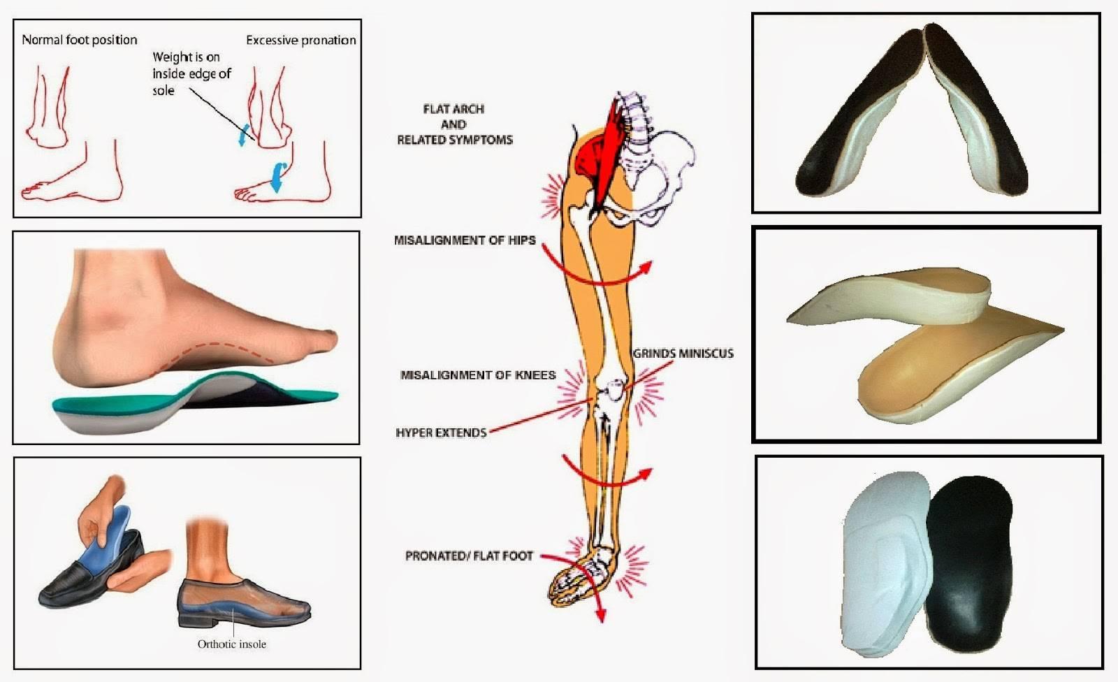 Ортопедические стельки для детей при плоскостопии с супинатором: правила выбора | покупки | vpolozhenii.com