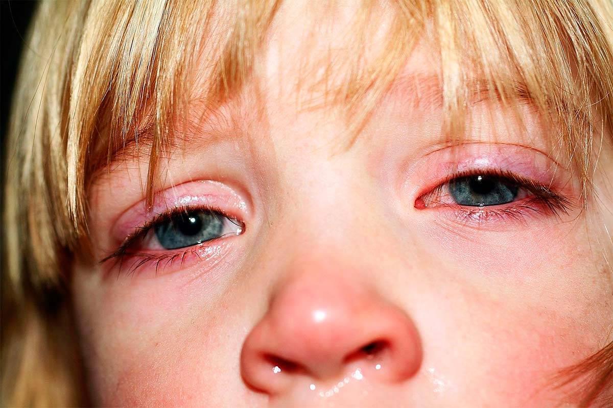 Аллергический конъюнктивит у ребенка: причины, симптомы и капли для лечения