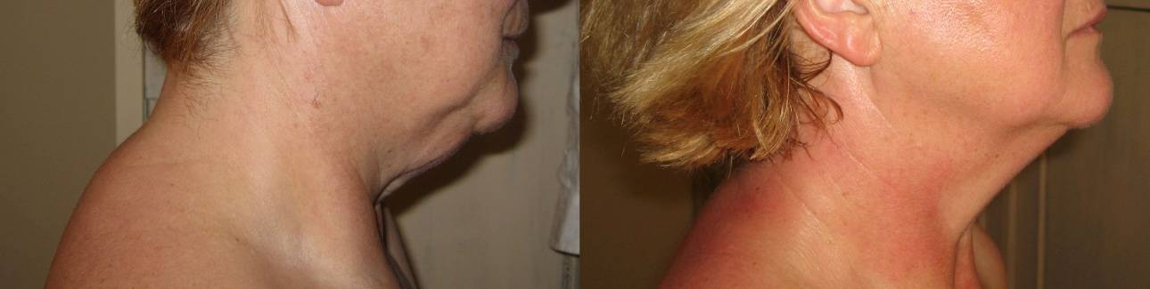 У ребенка опухла шея с двух сторон под ухом