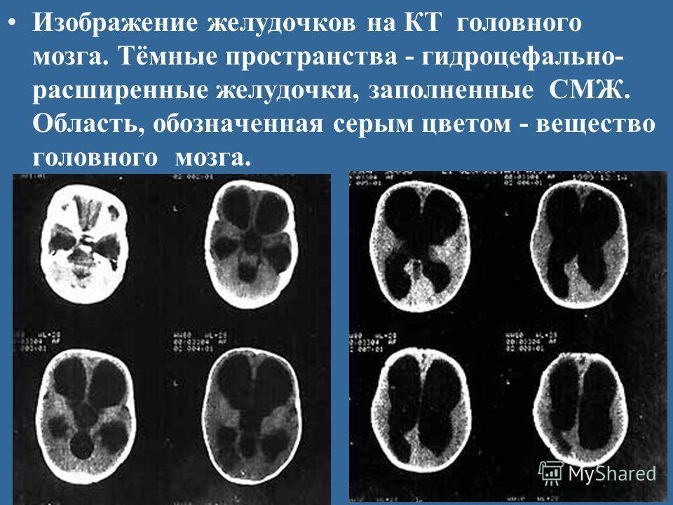 Увеличение желудочков головного мозга у новорожденных детей