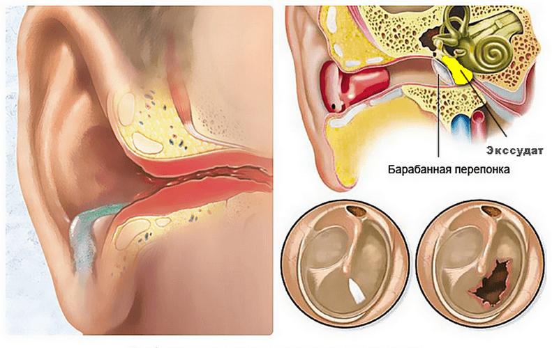 Болит ухо, но не заложено: причины и лечение