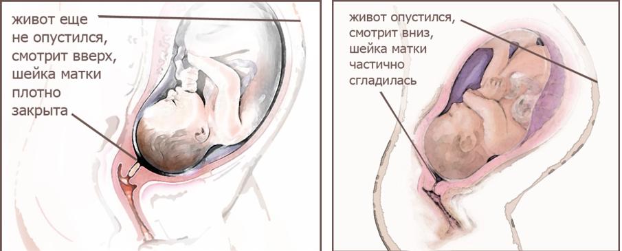 Как понять, что живот опустился перед родами?