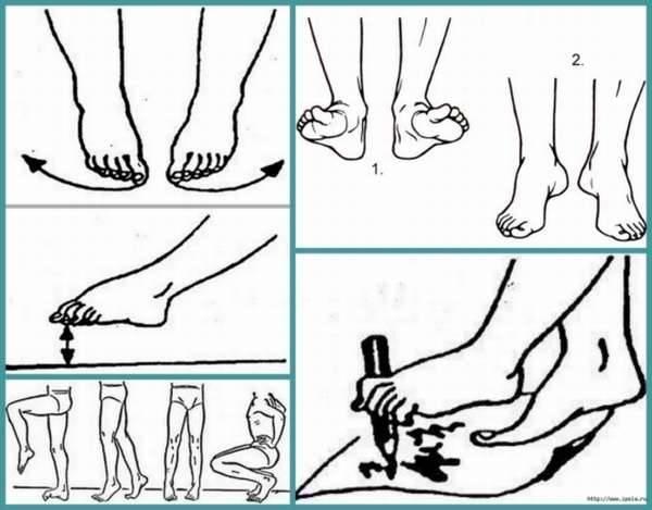 Лфк (лечебная физкультура) при плоскостопии у взрослых: комплекс упражнений для ног