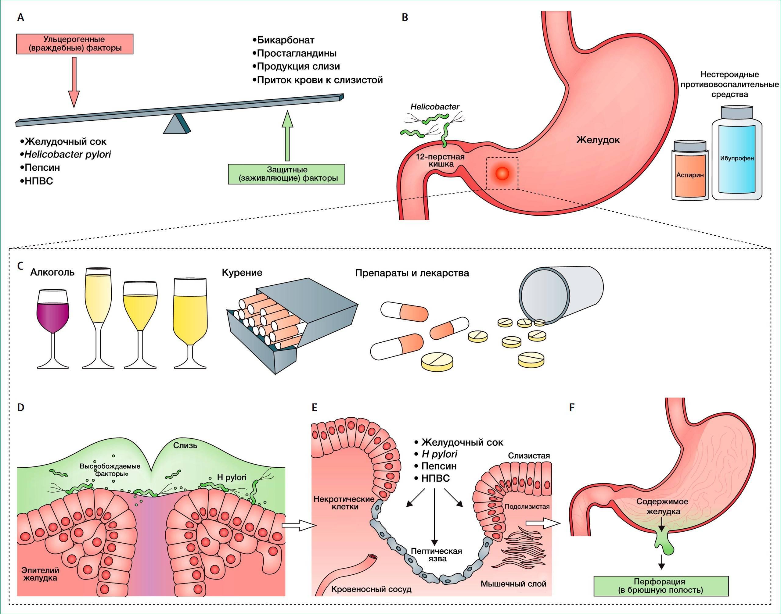 Схема лечения язвы желудка и двенадцатиперстной кишки