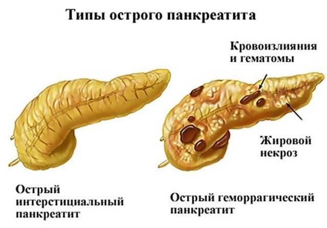 Панкреатит у детей: симптомы и лечение острого и хронического воспаления поджелудочной железы