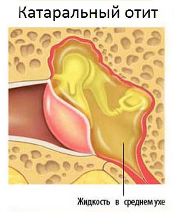 Двухсторонний отит у ребенка и взрослого: признаки острого катарального среднего, экссудативного, лечение