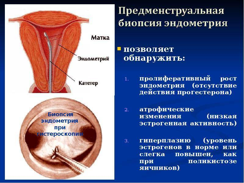 Гиперплазия эндометрия. виды гиперплазии, причины, симптомы и диагностика. лечение различных форм гиперплазии.
