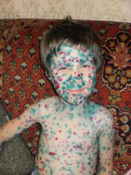 Осложнения после ветрянки у ребенка со стороны кожи и другие