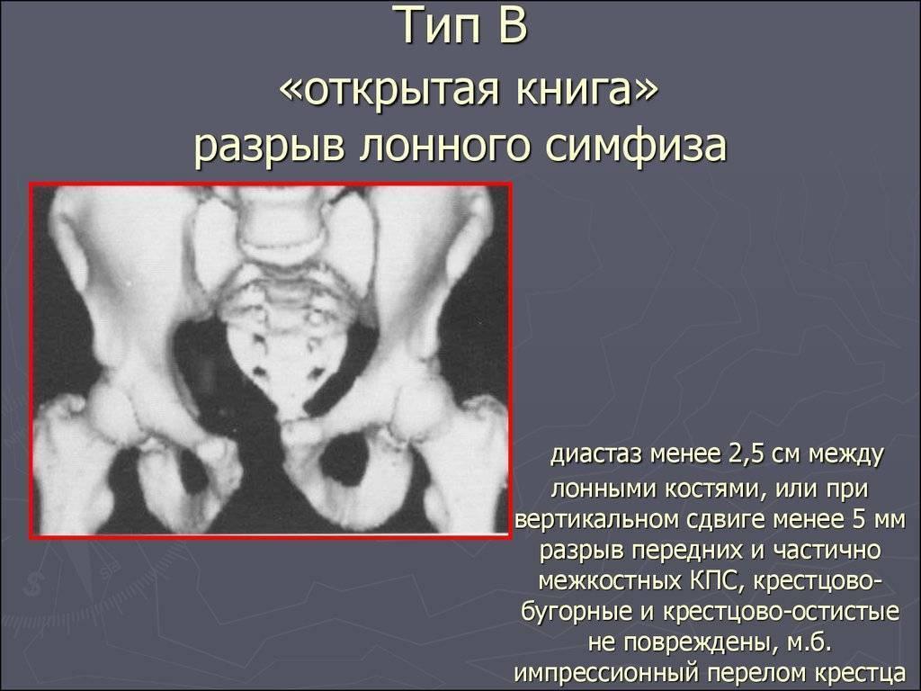 Какими признаками и ощущениями оно сопровождается?, когда при беременности до родов начинается расхождение костей таза